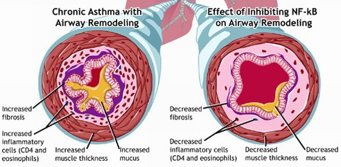 muccioli asma